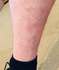 eczema-after-naturopath-treatment