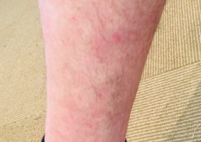 eczema-after-naturopath-treatment