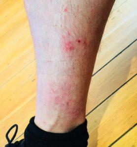 eczema-before-naturopath-treatment