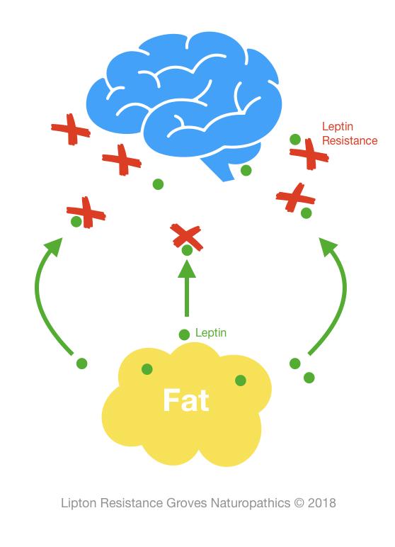 Leptin Resistance Groves Naturopathics 07102018